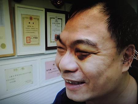 恐慌針灸溫崇凱中醫師.jpg