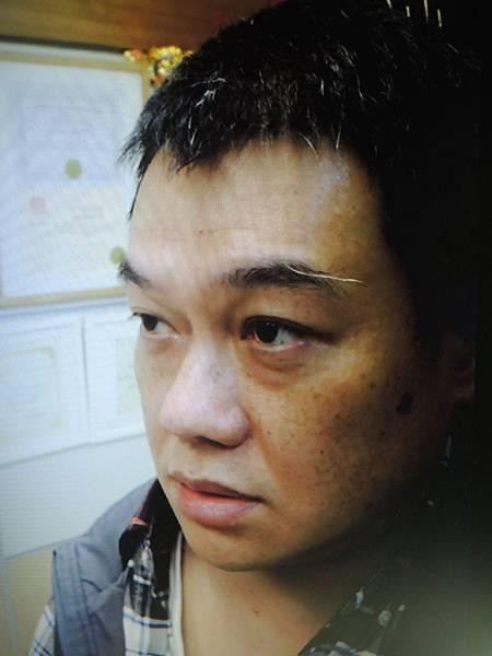 神經瘤針灸溫崇凱中醫師.jpg