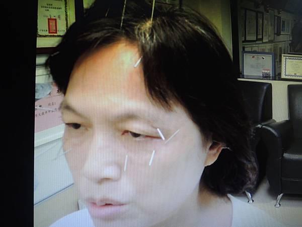 胃食道逆流針灸溫崇凱中醫師1.jpg