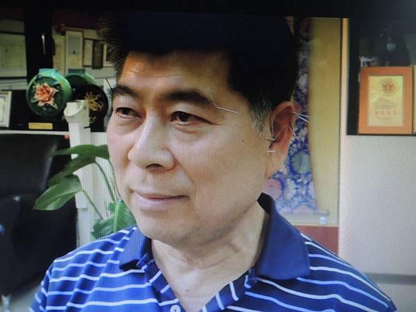 巴金森手抖 溫崇凱中醫師針灸.jpg