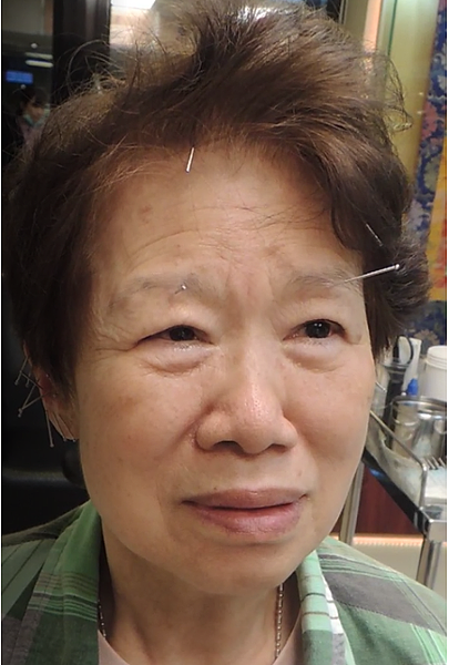 胃酸針灸溫崇凱中醫師.png