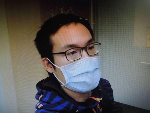 脊椎損傷脹氣針灸溫崇凱中醫師.jpg