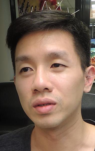 聽力損害針灸溫崇凱中醫師.png
