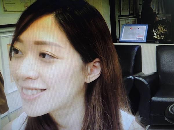 右髖骨痛針灸溫崇凱中醫.JPG