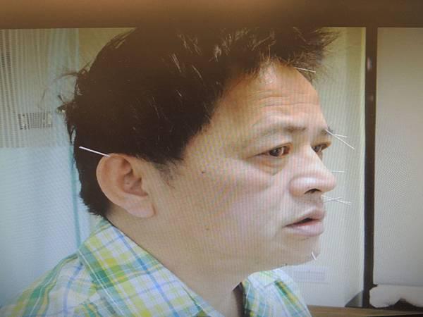 0113溫崇凱中醫師針灸.JPG