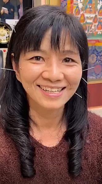 顳顎針灸溫崇凱中醫師.png