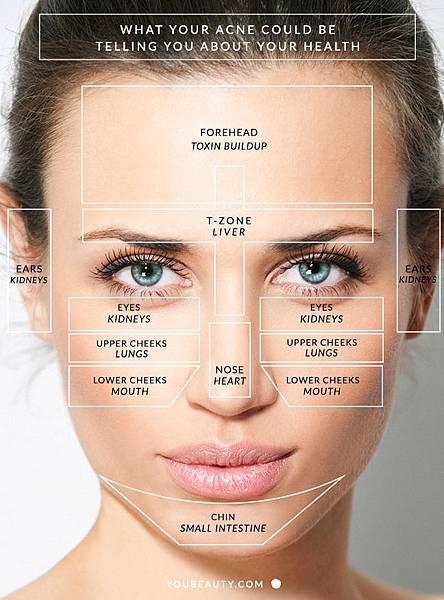 acne-map