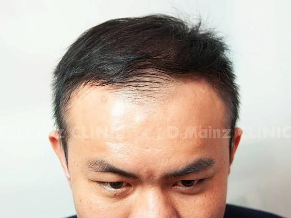 「掉髮」男的女的都會遇到的問題~ (5).jpg
