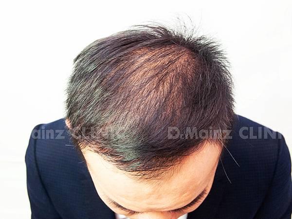 「掉髮」男的女的都會遇到的問題~ (3).jpg