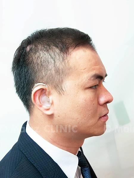 「掉髮」男的女的都會遇到的問題~ (7).jpg
