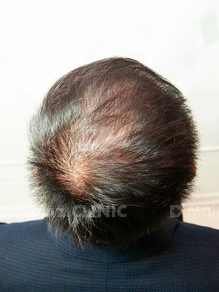 「掉髮」男的女的都會遇到的問題~ (6).jpg