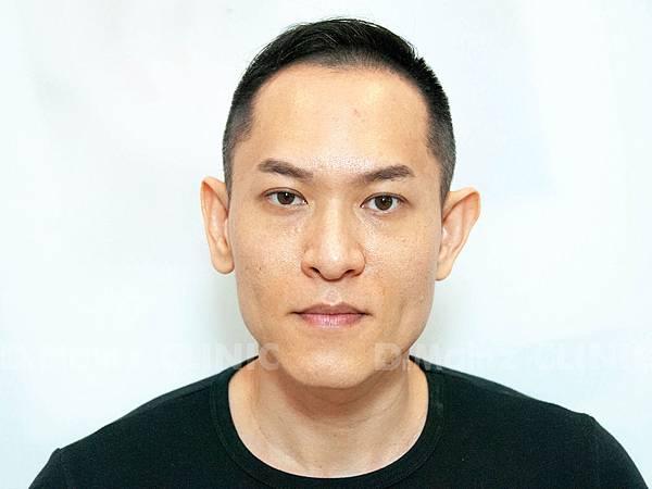 掉髮太嚴重,好像有點禿!台灣掉髮族年輕化  (9).jpg