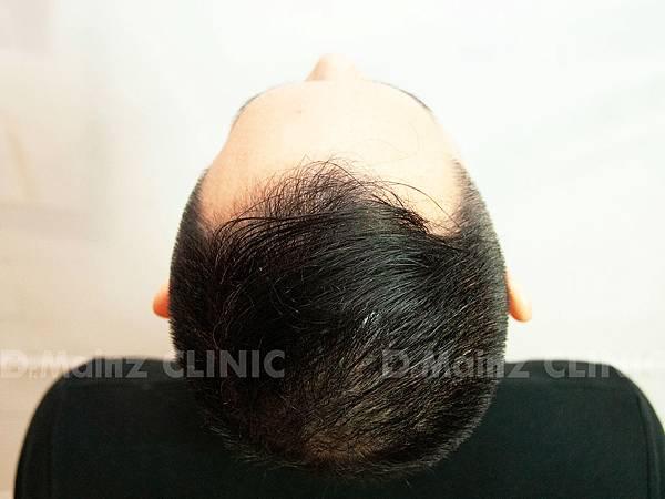 掉髮太嚴重,好像有點禿!台灣掉髮族年輕化  (12).jpg