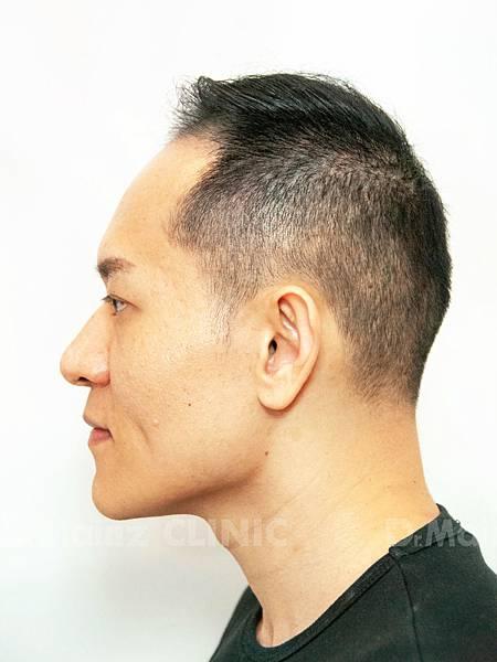 掉髮太嚴重,好像有點禿!台灣掉髮族年輕化  (10).jpg