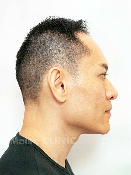 掉髮太嚴重,好像有點禿!台灣掉髮族年輕化  (11).jpg