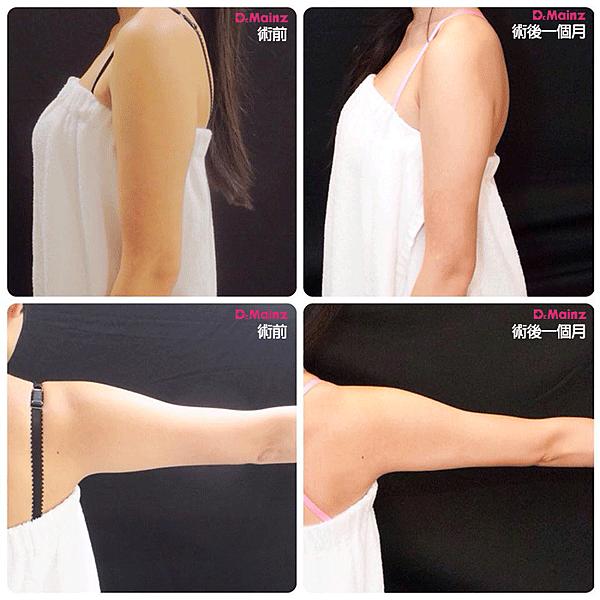 「CoolSculpting酷塑」冷凍減脂-35分鐘告別掰掰袖 (4).jpg