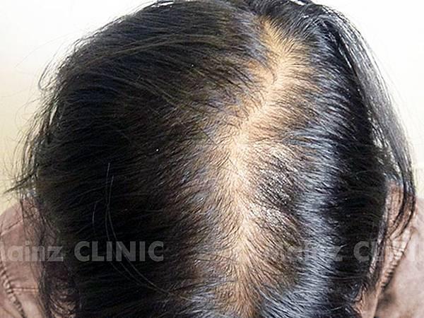 女性掉髮,頭頂越來越稀疏「真的變糙老了」 (4).jpg