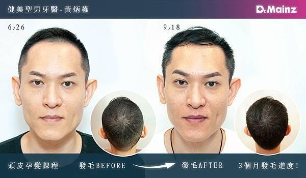 「耐心、耐心、耐心」用心耕耘毛髮,美夢成真《孕髮療程》 (2).jpg