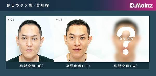 「耐心、耐心、耐心」用心耕耘毛髮,美夢成真《孕髮療程》 (1).jpg