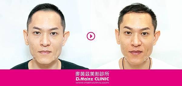 「耐心、耐心、耐心」用心耕耘毛髮,美夢成真《孕髮療程》 (6).jpg