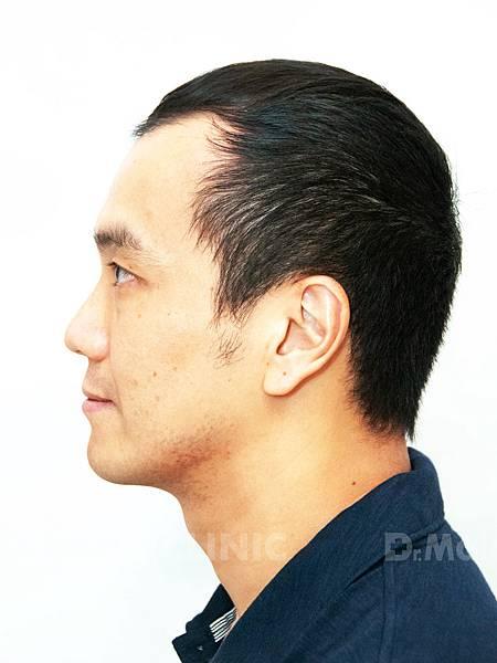 養髮育髮抓住一線生機X張詩宏Danny老師《生髮》 (4).jpg