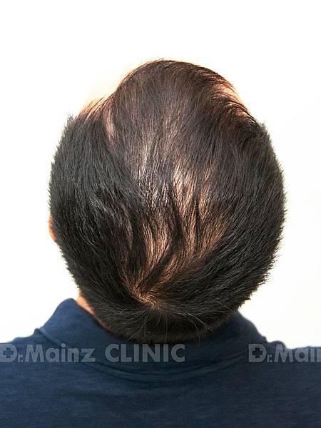 養髮育髮抓住一線生機X張詩宏Danny老師《生髮》 (3).jpg