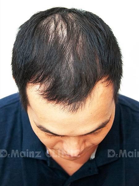 養髮育髮抓住一線生機X張詩宏Danny老師《生髮》 (2).jpg