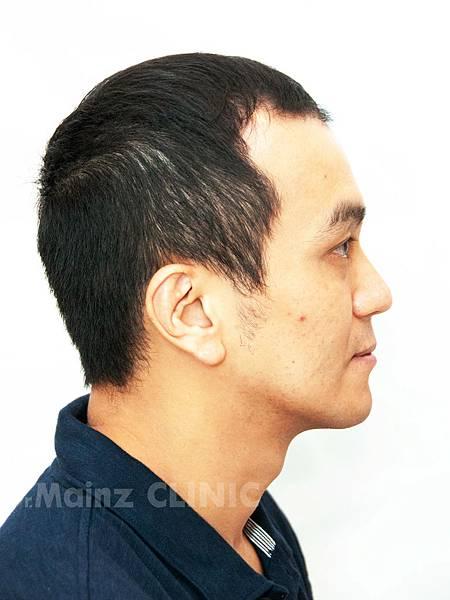 養髮育髮抓住一線生機X張詩宏Danny老師《生髮》 (5).jpg