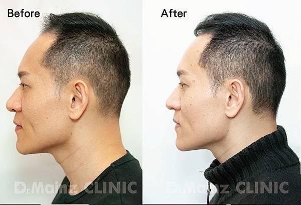 用盡一生的力量也要喚回『烏黑的頭毛』《孕髮療程》 (3).jpg