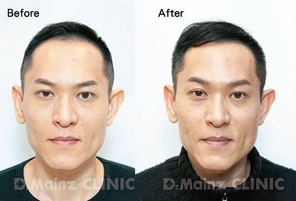 用盡一生的力量也要喚回『烏黑的頭毛』《孕髮療程》 (4).jpg