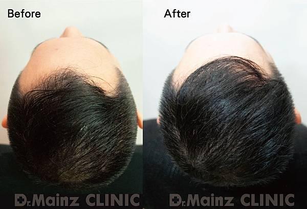用盡一生的力量也要喚回『烏黑的頭毛』《孕髮療程》 (1).jpg