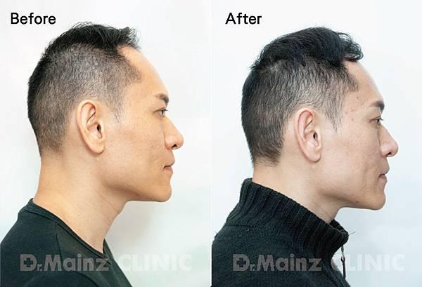 用盡一生的力量也要喚回『烏黑的頭毛』《孕髮療程》 (2).jpg
