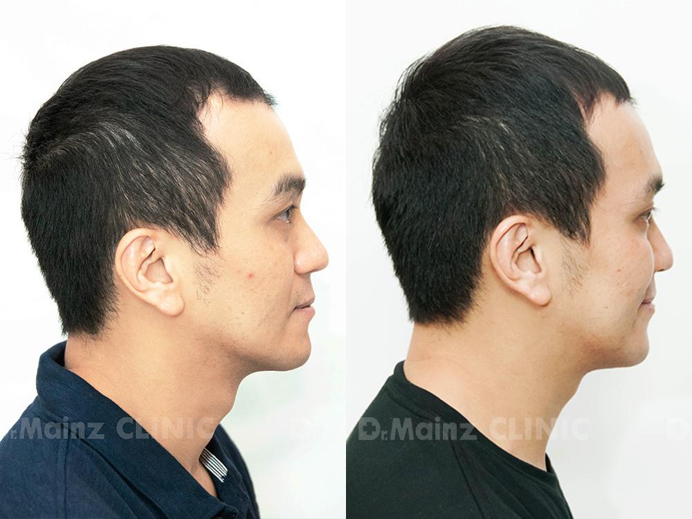 生髮絕對沒有捷徑x張詩宏Danny老師《孕髮療程》 (4).jpg
