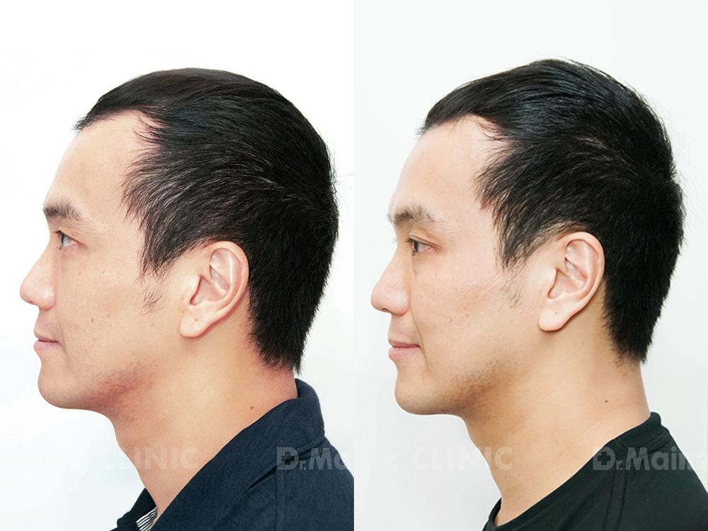 生髮絕對沒有捷徑x張詩宏Danny老師《孕髮療程》 (3).jpg