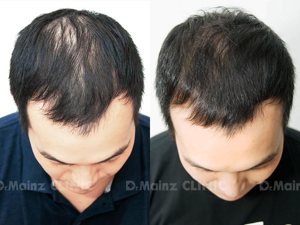 生髮絕對沒有捷徑x張詩宏Danny老師《孕髮療程》 (1).jpg