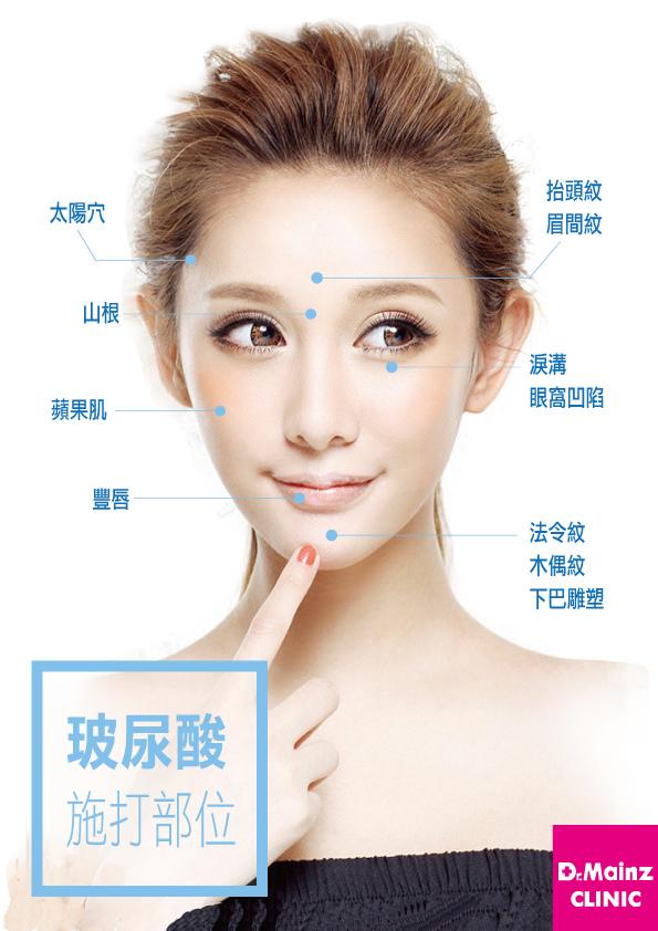 為準新娘量身訂製精緻臉龐《玻尿酸》 (1).jpg