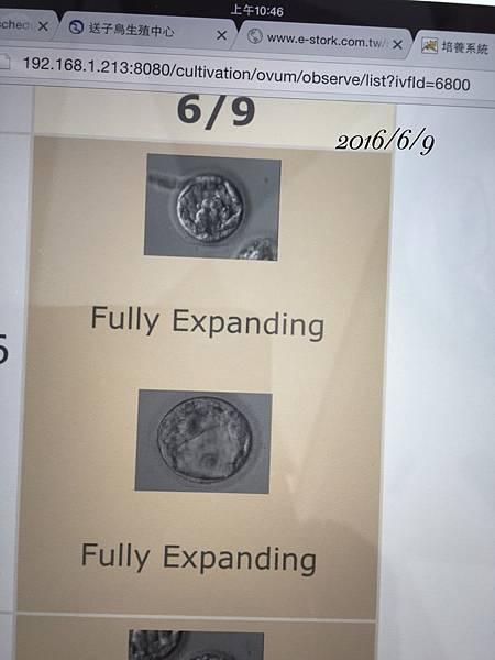 0609植入胚胎1.JPG