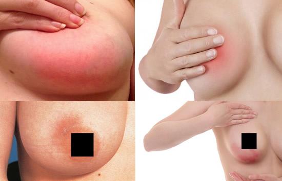 什麼是乳腺炎mastitis