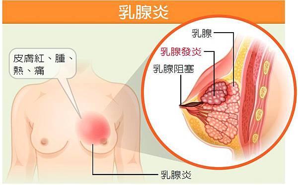 什麼是乳腺炎?什麼是乳腺阻塞?