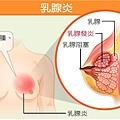 什麼是乳腺阻塞? 什麼是乳腺炎?