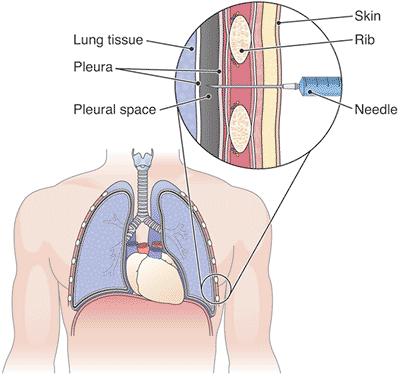 肋膜.png