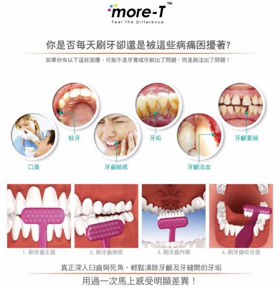 I型牙刷VST型牙刷-1