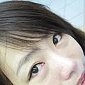 眼睛還是很腫.JPG