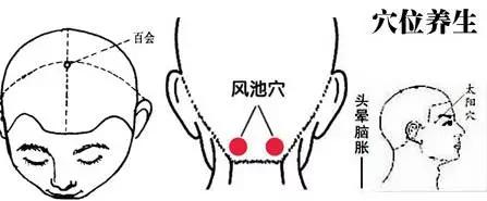 以拇指、中指掐揉「風府」兩側胸鎖乳突肌與風池穴.png
