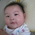 可惡的蚊子~叮的我女兒滿臉包