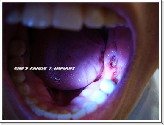 植牙-1.jpg