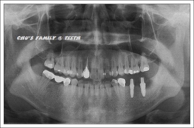 植牙第二階段-4.jpg
