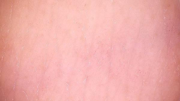 瑪麗 - 敏感原實驗皮膚鏡照片(使用安心霜後) - 理膚寶水多容安新品上市體驗會