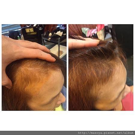 頭皮管理11次4個月.jpg