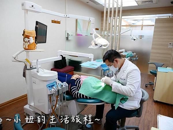 中壢當代牙醫 DSD 牙套 貼片P1170845.jpg